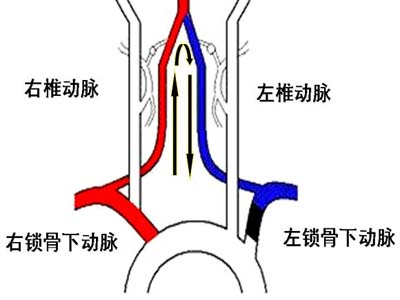 下 動脈 鎖骨